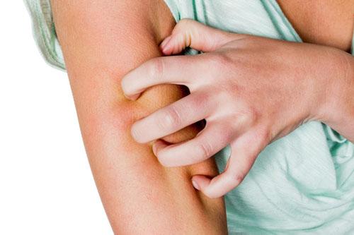 Eine Frau hat nach einem Mückenstich eine juckende Haut und kratzt sich