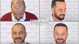 Haartransplantation-in-der-turkei-5